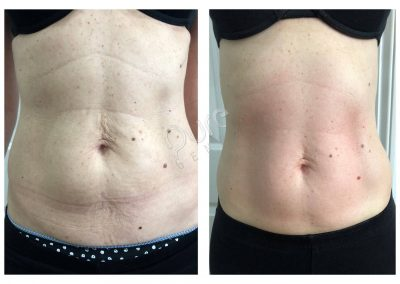 4D-Sculpt-Abdomen-skin-tightening-4treatment-results