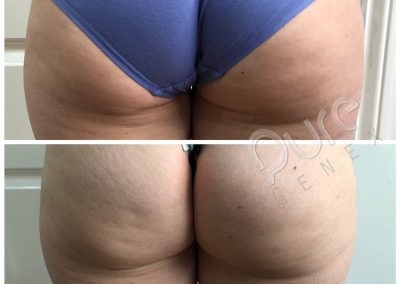 4D-Sculpt-Bum-Lift-1treatment-results-WM