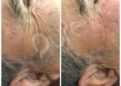 4D-Sculpt-Crows-feet-1treatment-results-WM