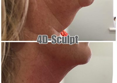 4D-Sculpt-Neck-Lift-1treatment-results-WM